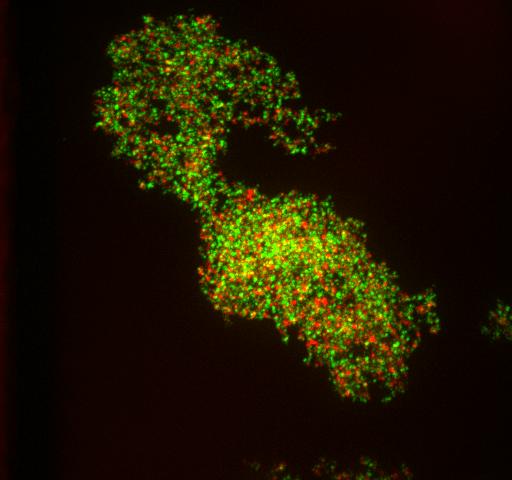 Protein aggregates in heatshocked yeast